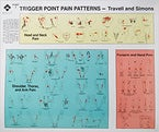 Travell and Simons' Trigger Point Pain Patterns Wall Charts