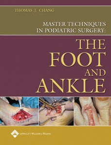 Master Techniques in Podiatric Surgery: The Foot and Ankle