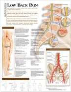 Understanding Low Back Pain Anatomical Chart