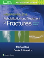 Hoppenfeld's Treatment and Rehabilitation of Fractures