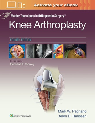 Master Techniques in Orthopedic Surgery Knee Arthroplasty - 4th Edition 9781496315052.jpg?auto=format&w=298&fit=max&q=80&dpr=1