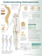Understanding Osteoporosis