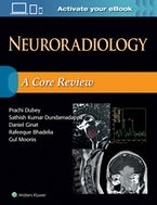 Neuroradiology: A Core Review