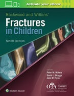 Rockwood and Wilkins Fractures in Children