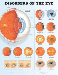 Disorders of the Eye Anatomical Chart
