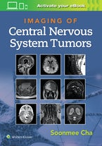Imaging of CNS Tumors
