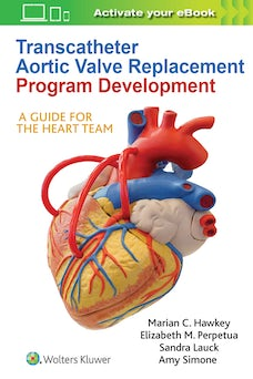 Transcatheter Aortic Valve Replacement Program Development
