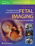 Fundamental and Advanced Fetal Imaging Ultrasound and MRI