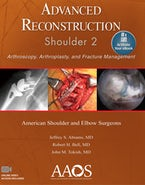 Advanced Reconstruction: Shoulder 2: Print + Ebook with Multimedia