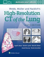 Webb, Müller and Naidich's High-Resolution CT of the Lung