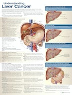Understanding Liver Cancer Anatomical Chart